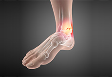 Non-Surgical Treatment for Foot and Ankle Pain