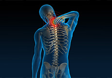 Understanding Your Neck and Back Pain